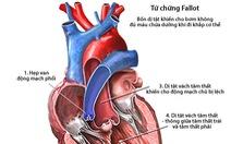 Các bệnh tim bẩm sinh thường gặp