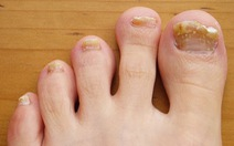 Những dấu hiệu ở bàn chân cảnh báo vấn đề sức khỏe