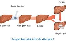 Biểu hiện viêm gan C ở phụ nữ