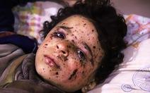 Cuộc chiến chưa hồi kết ở Syria