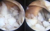 Gắp 200 hạt sụn trong khớp khuỷu của một thanh niên 18 tuổi