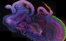 Tạo não người trong phòng thí nghiệm, lằn ranh đạo đức đã bị vượt qua?