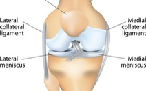Điều trị thoái hóa khớp gối - Kỳ 1: Bảy nguyên nhân đau đớn