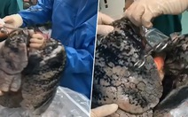 Sốc với lá phổi đen sì do hút thuốc của người hiến tạng