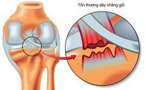 Phát hiện tế bào gốc dây chằng, sẽ hồi phục dây chằng không phải mổ?