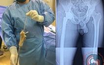 Ghép xương đùi nhân tạo in 3D cho bệnh nhân có khối u phì đại