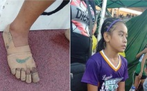 Nữ sinh giành 3 huy chương vàng điền kinh dù không có giày mang