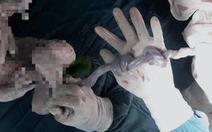 Mổ khẩn cấp cứu sống bé sơ sinh có dây rốn bị thắt 2 nút