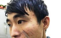 Khởi tố vụ án nữ sinh bị sát hại trong nhà nghỉ ở Sầm Sơn