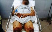 Việt kiều về quê ăn tết bị tạt axit, cắt gân chân
