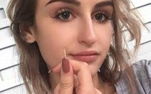 Cây mọc trong lỗ tai thiếu nữ 17 tuổi