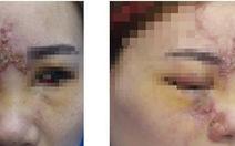 Mù mắt sau tiêm filler nâng mũi tại Đài Loan