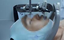 Giảm xạ trị ung thư đầu cổ từ 25-35 lần xuống còn 6 lần
