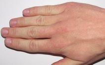 10 lý do khiến bạn luôn bị lạnh đôi bàn tay