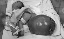 Cứu sống bé gái sơ sinh có bướu quái nặng gấp 1,5 lần cơ thể