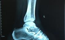Không gãy xương, trật khớp mà vẫn đau chân vì chấn thương thể thao