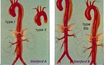 Bóc tách động mạch chủ: tỷ lệ tử vong tăng 1%/giờ