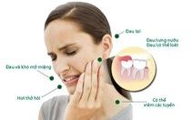 Giảm đau khi mọc răng khôn