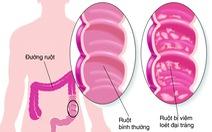 Bào tử lợi khuẩn LiveSpo COLON hỗ trợ điều trị viêm đại tràng