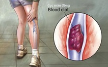 Giảm hình thành cục máu đông sau phẫu thuật