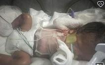 Bác sĩ Mỹ chữa trị cho bé sơ sinh không có da