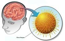 Bệnh viêm não do virus Herpes simplex