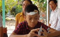 Học sinh lớp 7 bị bạn đánh 'đầu bê bết máu'