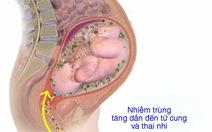 Viêm màng ối và thai kỳ