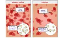 Bệnh thiếu máu do thiếu sắt ở trẻ sơ sinh