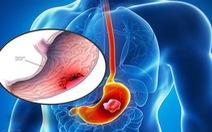 Có thể điều trị ung thư dạ dày không phẫu thuật không?