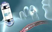 Nội soi đường tiêu hóa bằng viên nang