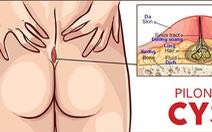 Bệnh nang lông dưới da vùng xương cùng cụt - xoang lông
