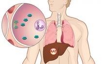 Bệnh thiếu hụt men Alpha-1-Antitripsin