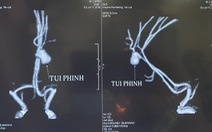 Bác sĩ kinh ngạc khi gặp ca phình mạch não vỡ ở trẻ 3 tuổi