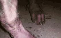 Chân 'người sói' hóa ra chỉ là chân… chó ghẻ