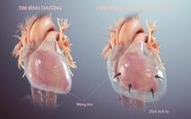 Bệnh viêm màng ngoài tim co thắt có thể dẫn tới suy tim