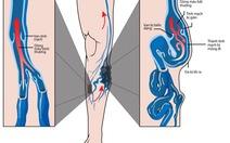 Nguyên nhân của suy giãn tĩnh mạch chân và cách chữa