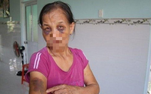 Đấm mẹ chồng bầm tím 2 mắt, nàng dâu bị phạt 2 triệu đồng