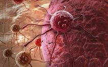 Phát hiện 'gót chân Achilles' của tế bào ung thư