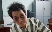 Người 'nựng' trẻ 7 tuổi được tại ngoại, Hội bảo vệ quyền trẻ em yêu cầu tạm giam
