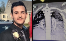 Thanh niên hút thuốc lá điện tử có phổi như người nghiện tuổi 60