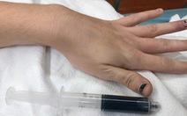 Máu hóa xanh vì dùng quá nhiều thuốc giảm đau