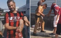 Video cổ động viên Brazil bị mất bàn tay vì pháo phát nổ