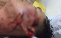 Khởi tố thanh niên đánh công an trọng thương vì bị phạt vi phạm giao thông