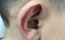 Trẻ tự nhiên nổi hạch tai, phát ban đỏ toàn thân bệnh gì?