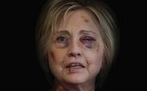 Hết hồn với ảnh bà Hillary Clinton bầm mặt như bị chồng đánh