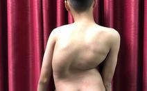 Chàng trai 17 tuổi cao thêm 8cm sau hai lần mổ vẹo cột sống