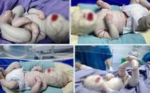 Bé bị vảy cá bẩm sinh tình trạng rất nặng: da căng, ngón tay chân dính nhau