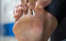Phủ nano trên vớ để trị hôi chân