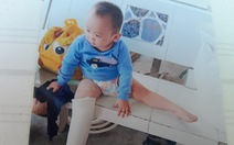 Nghi vấn bé trai 3 tuổi gãy chân bất thường tại điểm giữ trẻ